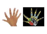 Six fingers per hand: A congenital additional finger brings motor advantages